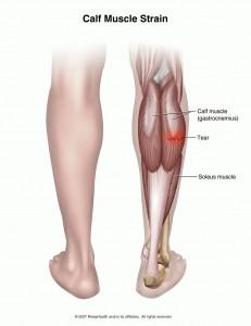 Calf-Sprain
