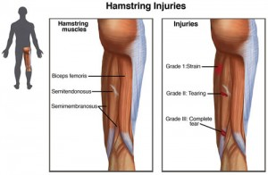 HamstringInjuries_Small